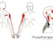 Physiotherapie ZüriOberland AG Körperkarte Triggerpunkte