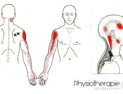 Dry Needling bei Myofaszialen Schmerzpunkten