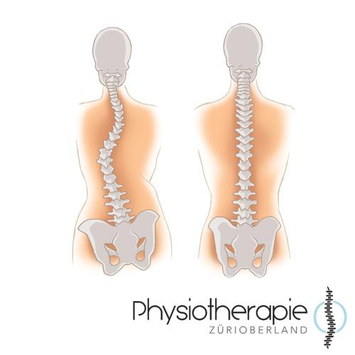 Physiotherapie ZüriOberland Dreidimensionale Skoliosetherapie